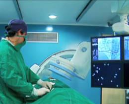angiografo2
